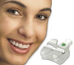 orthodontics_bracets
