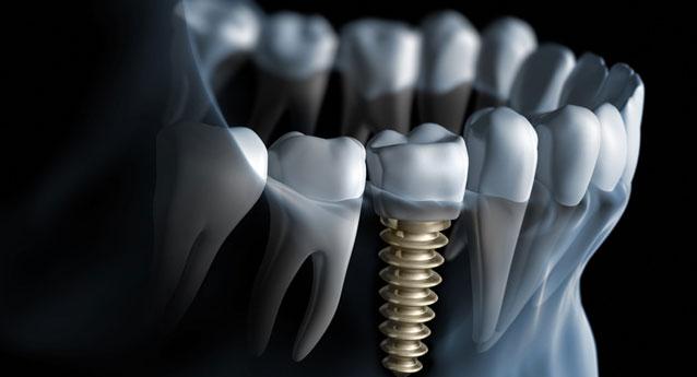 Οδοντικά εμφυτεύματα – Μύθος και πραγματικότητα (Μέρος 1)