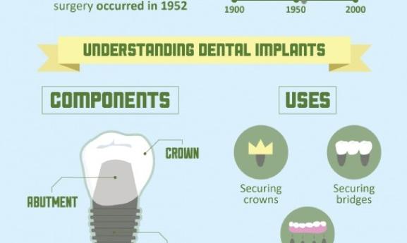 10 λόγοι για να επιλέξετε τα οδοντικά εμφυτεύματα